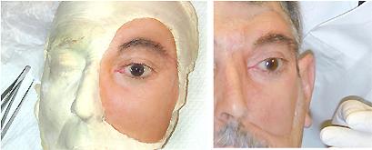 protesi maxillo facciale